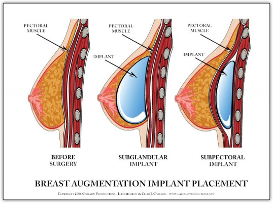breast-implant-diagram1-538x400